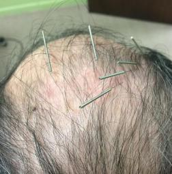 Neuro-Acupuncture for Stroke